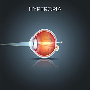 hyperopia plusz 5)